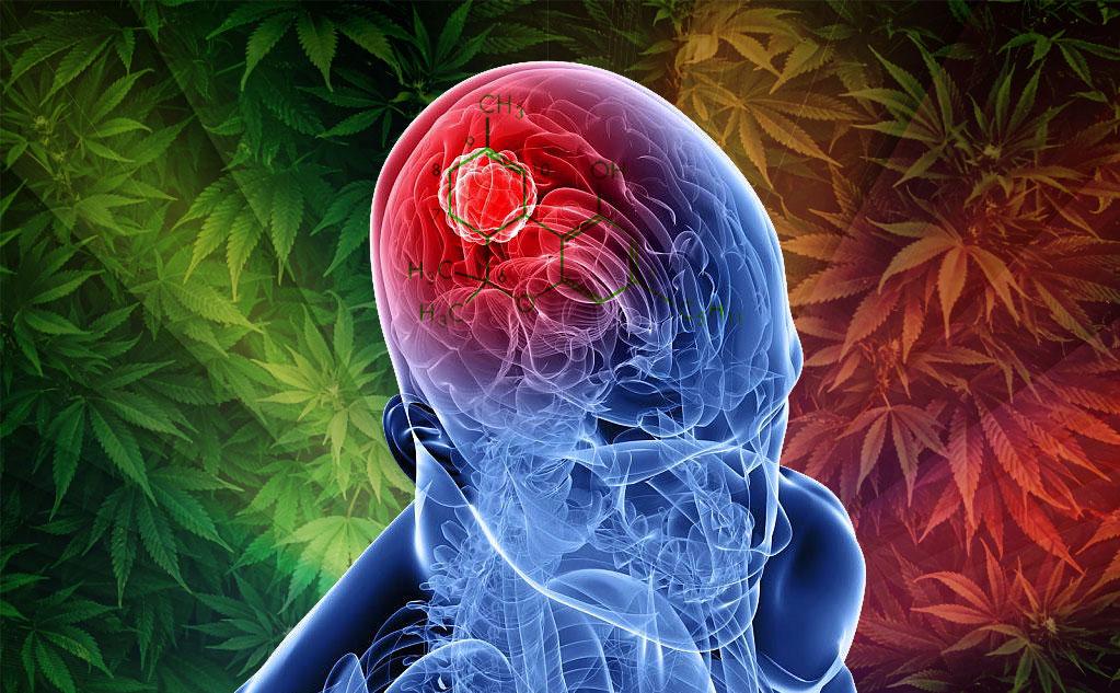 Hysteria Over Marijuana and the Teenage Brain: A Mild Rant